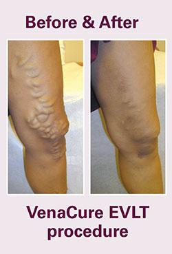 Before and After VenaCure EVLT